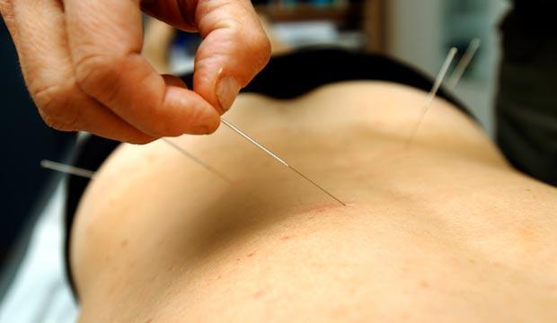 acupuncture et mal de dos