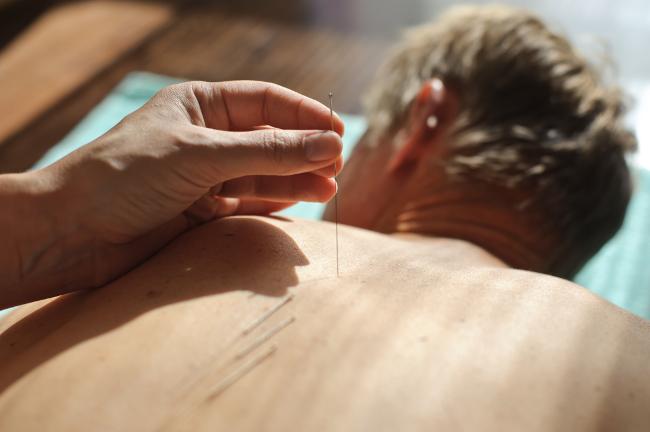 acupuncture et ronflement