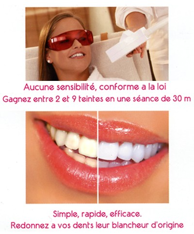 blanchiment des dents sans peroxyde
