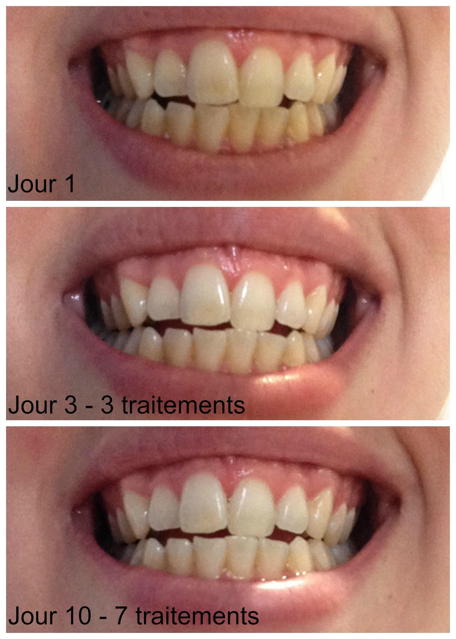 charbon vegetal poudre pour blanchir dents